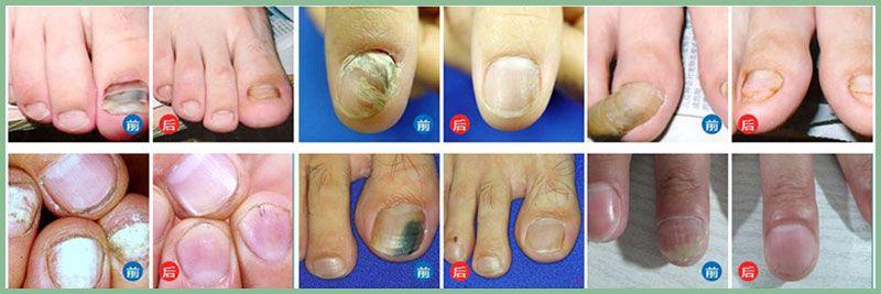 灰指甲治疗前后对比.jpg