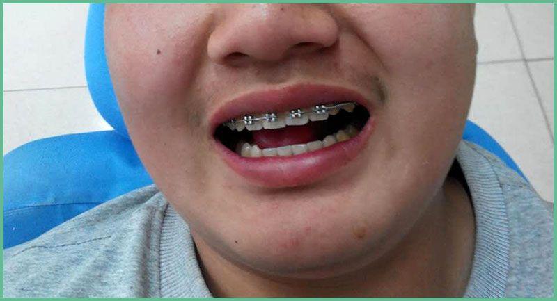 乐虎国际电子游戏杜玉华口腔牙科-牙齿矫正实4.jpg