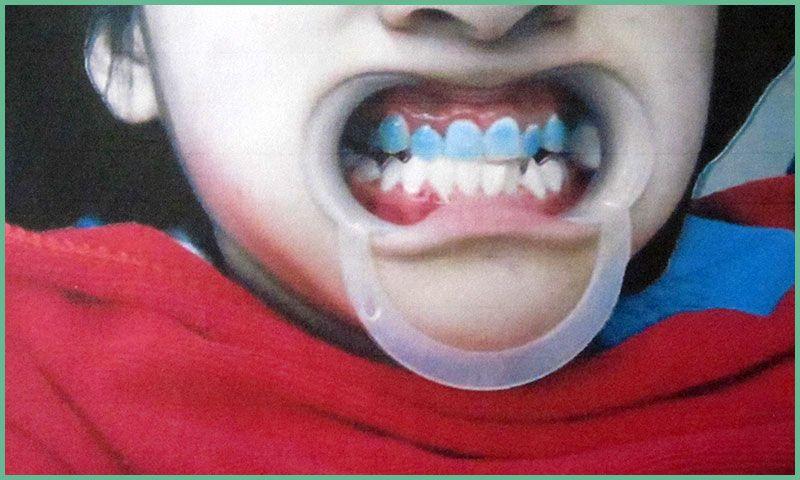 乐虎国际电子游戏杜玉华口腔牙科-牙齿矫正实拍1.jpg