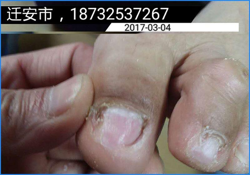 灰指甲治疗-雷竞技app下载苹果博禾皮肤健康家园.jpg