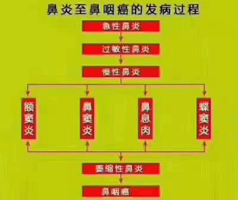 鼻炎至鼻炎癌的过程.jpg