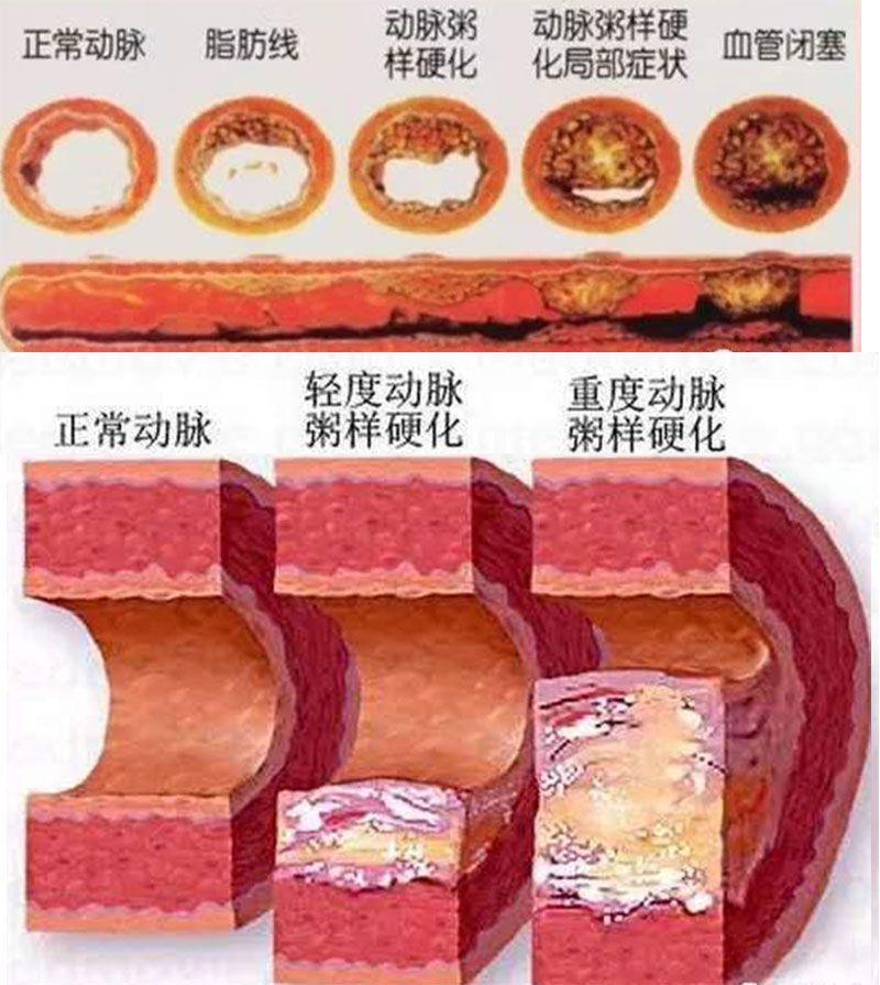 血管图片.jpg