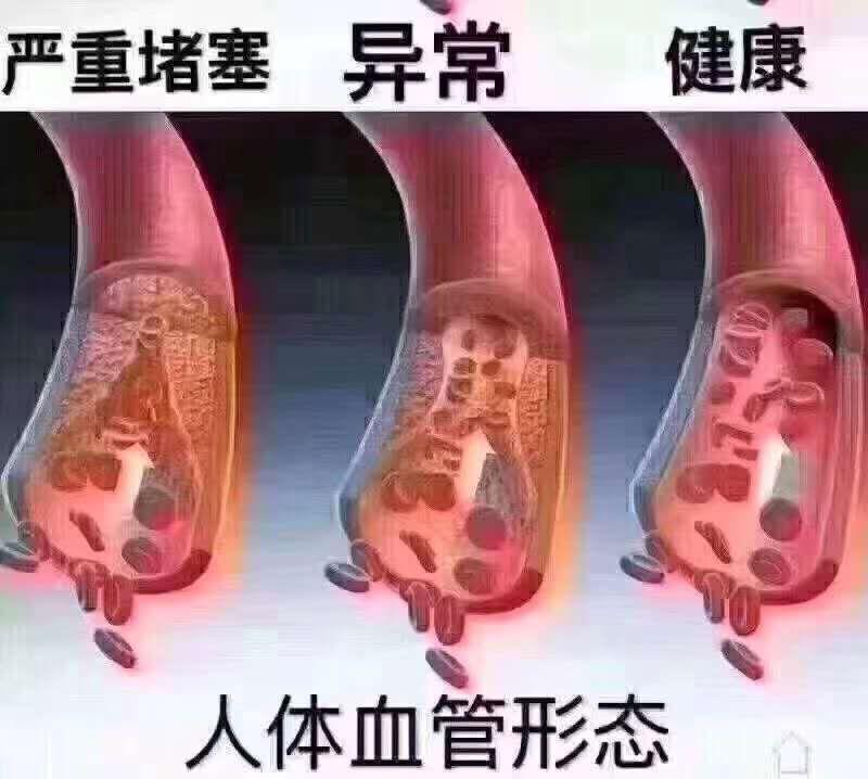 血管图片-2.jpg